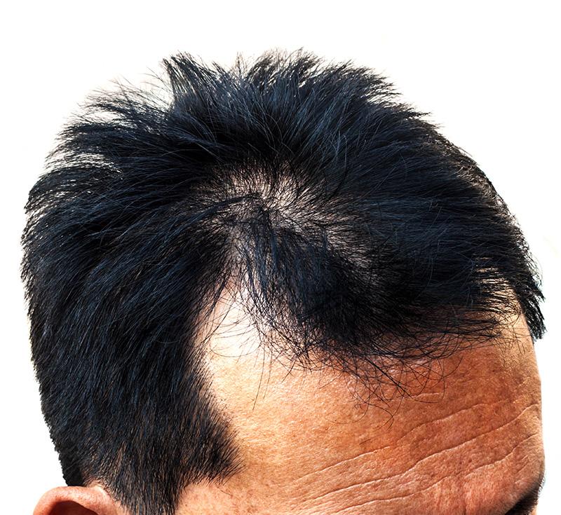 alopecia-maschile-2