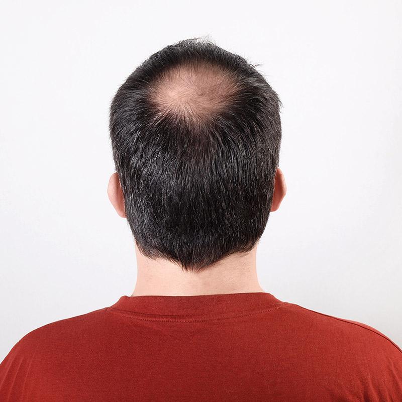 calvizie-caduta-capelli-vicenza-1