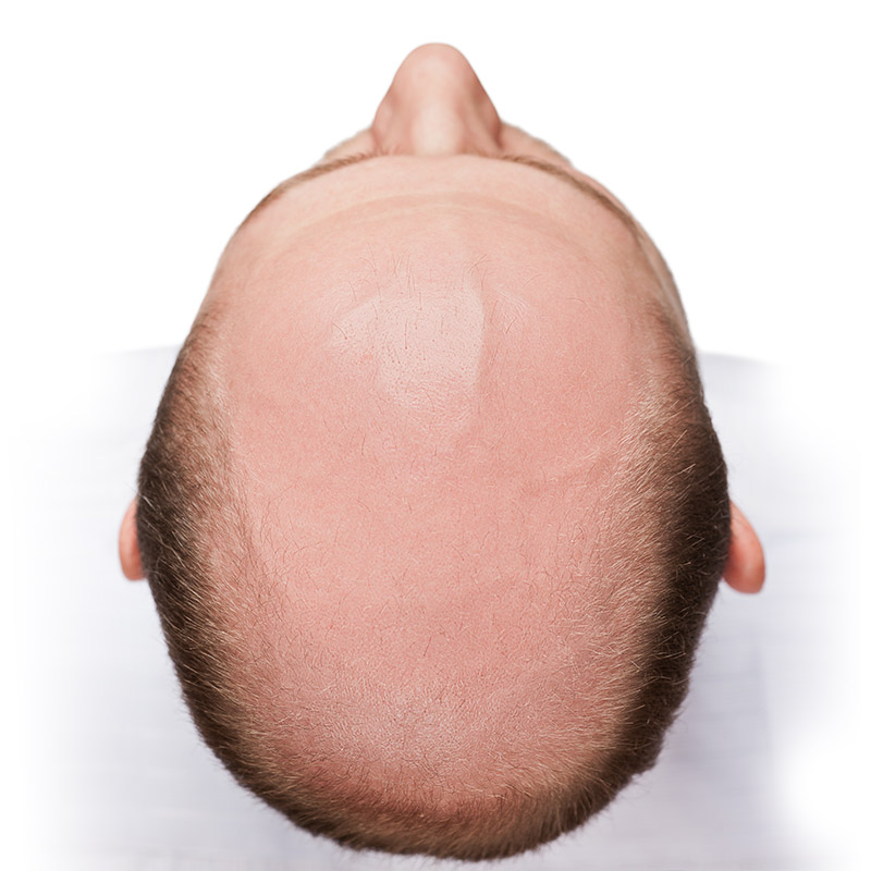 Human alopecia or hair loss - adult man bald head top view